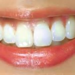 DIY Whiter Teeth in a Week